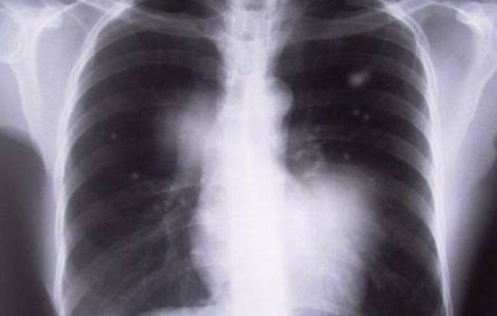 Qld govt moves to tackle black lung threat
